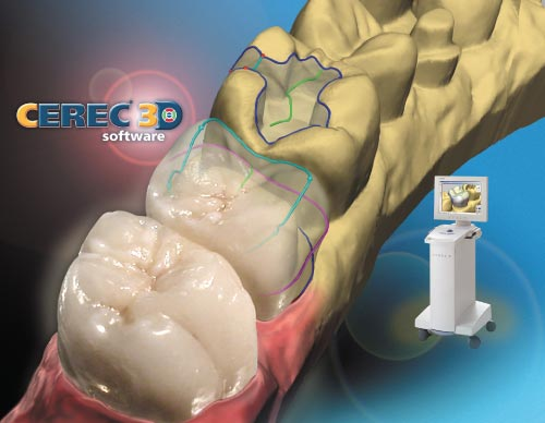 The CEREC CAM