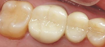 Composite Fillings - After