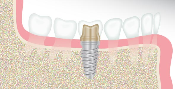 Dental Implant Illustration - Dental Solutions of Avon and Indianapolis