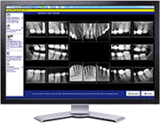 Dental digital x-rays on monitor