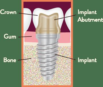 Dental Implants Avon Illustration