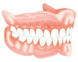 Overdenture Dental Implants