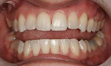 Straight teeth after Six Month Smiles braces correction
