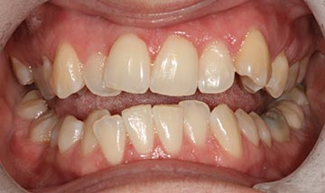 Crooked teeth before Six Month Smiles braces correction