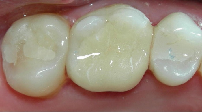 biocompatible composite tooth fillings