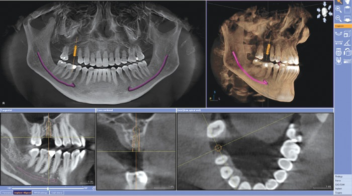 Galileos dental technology software images of teeth