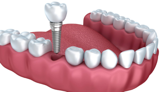 demonstration model of dental implants procedure