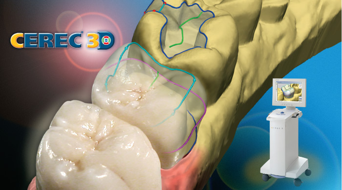 CEREC crowns provide one day service