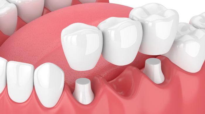 model of the dental bridge procedure