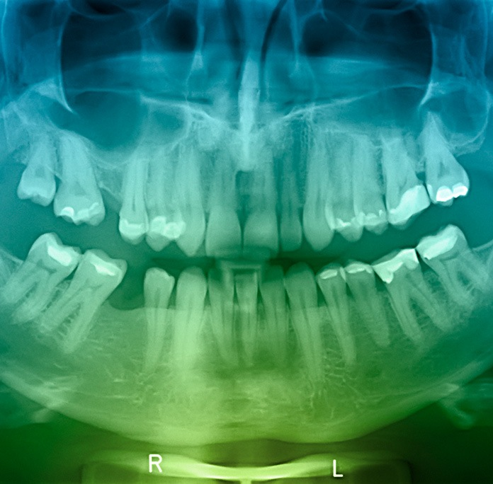full mouth xray