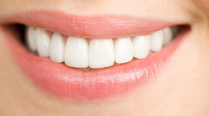 close up of a woman's mouth with porcelain veneers