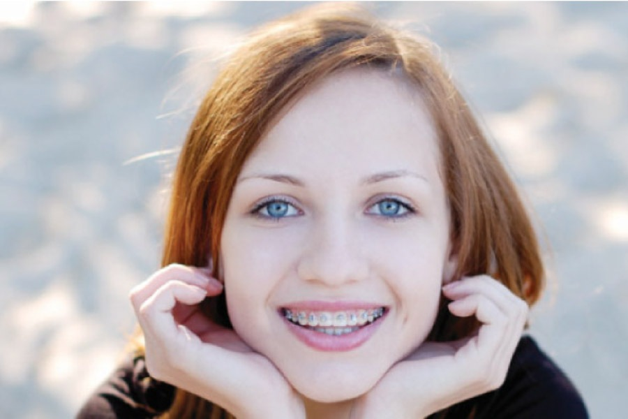 girl rests her chin on her hands and smiles to show off her braces